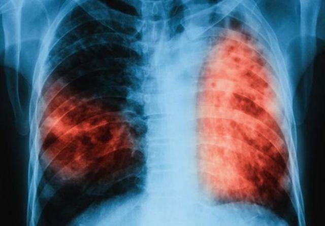 Безплатни прегледи за туберкулоза в Пазарджик