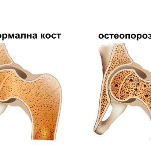 20 октомври – Световен ден без остеопороза